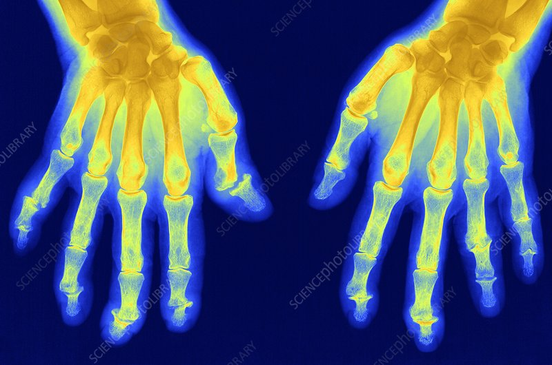 Arthritis of the hands, X-ray
