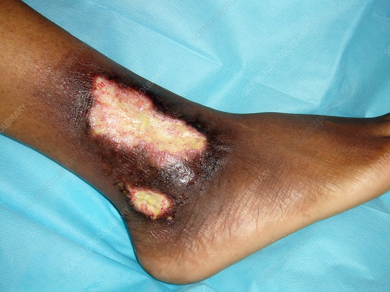 Ankle ulcer