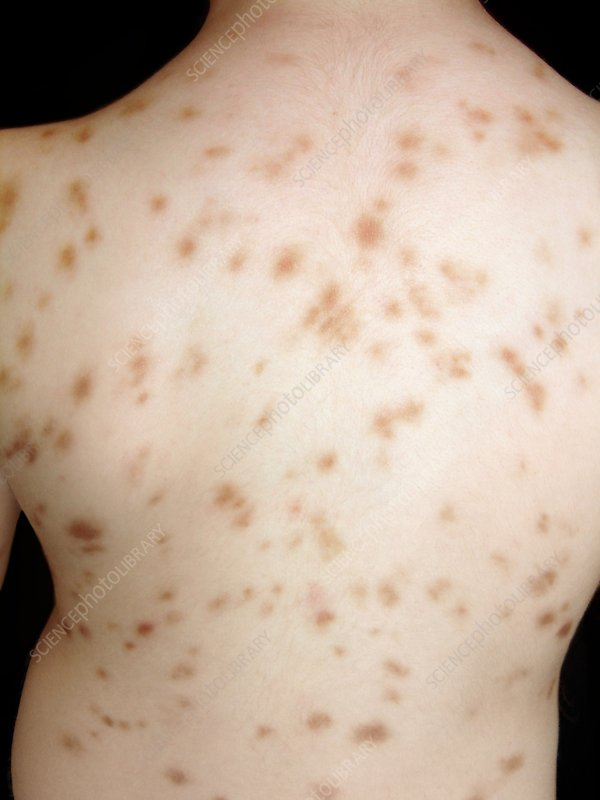 Cutaneous mastocytosis