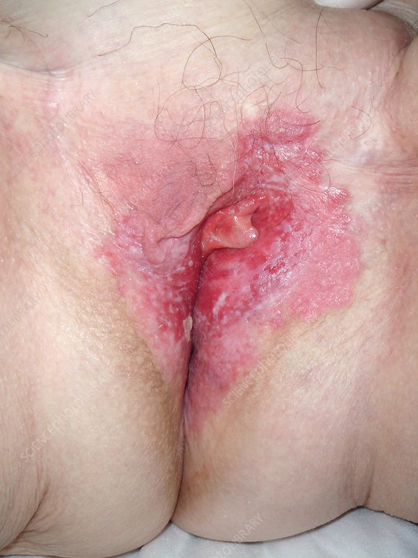 Paget's disease of the vulva