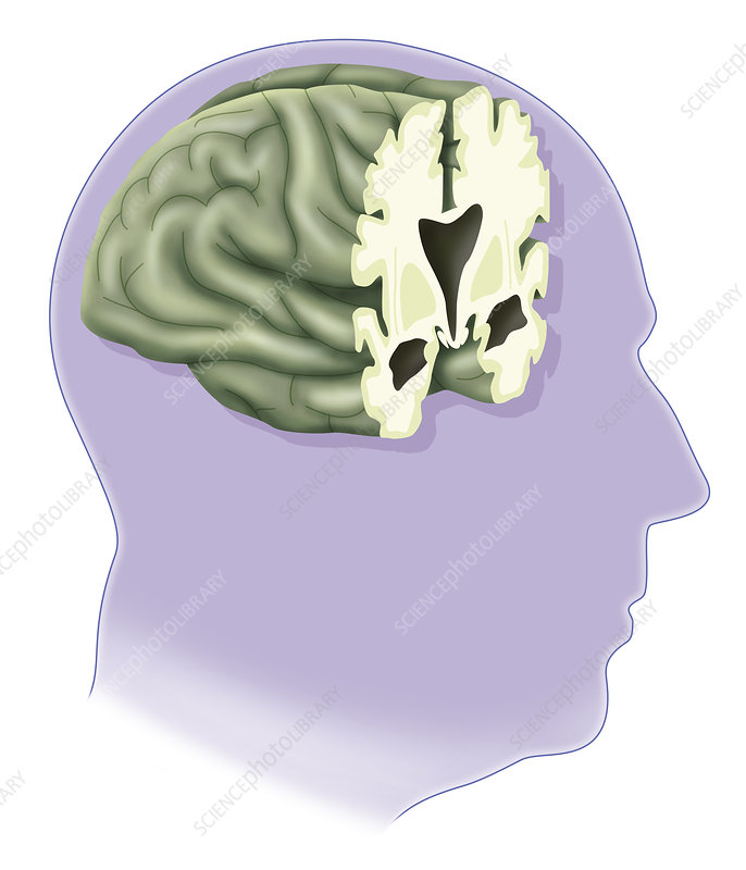 Alzheimer's Disease, Drawing