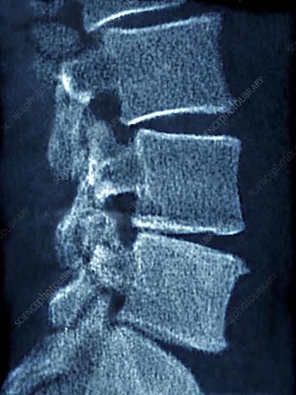 Vertebral Osteoarthritis, X-Ray