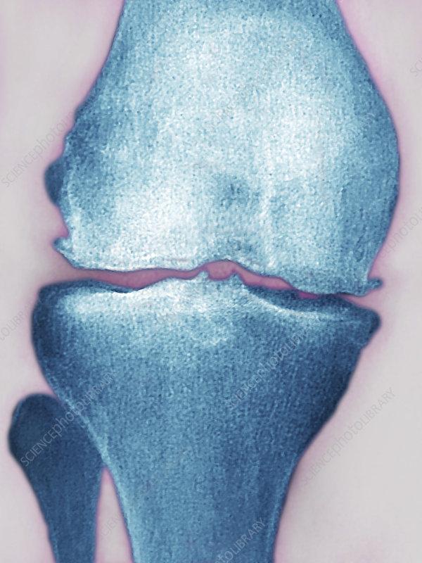 Knee Osteoarthritis, X-Ray