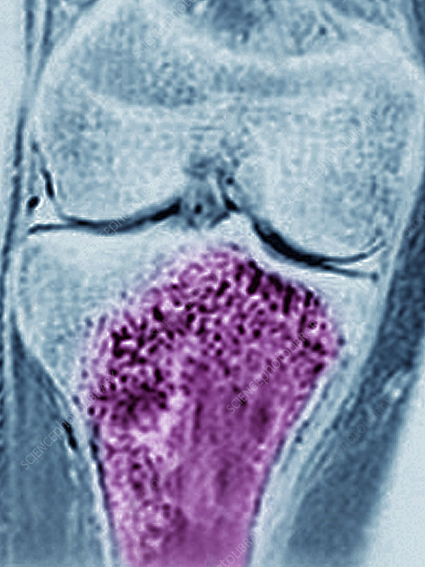 Osteosarcoma, Mri