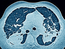 Silicotic Lung, Ct Scan