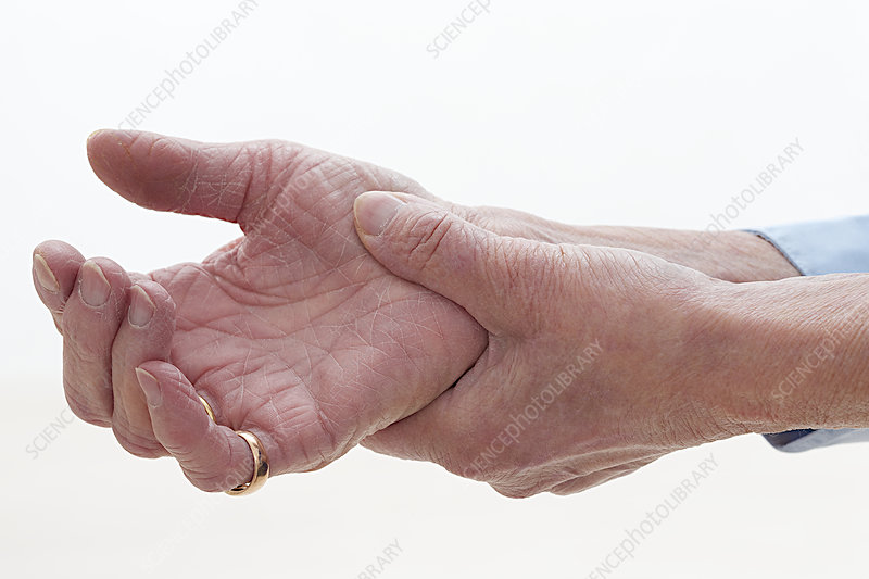 Painful Wrist In An Elderly Person