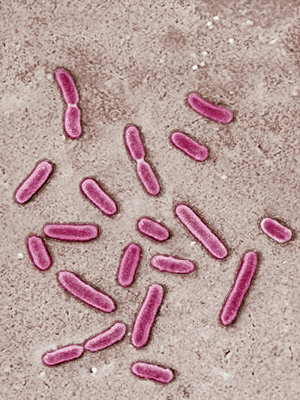 pseudomonas aeruginosa essay Pseudomonas aeruginosa: assessment of risk from drinking water the issue pseudomonas aeruginosa is a bacterium that is naturally found.