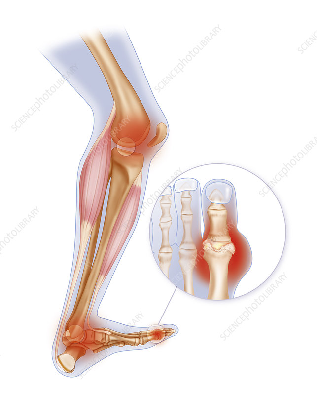 Gout Drawing Stock Image C021 4554 Science Photo Library