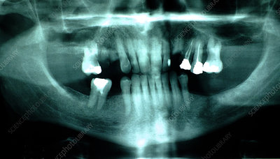 Tooth, x-ray