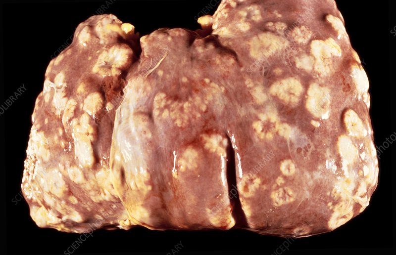 Secondary cancers of the liver