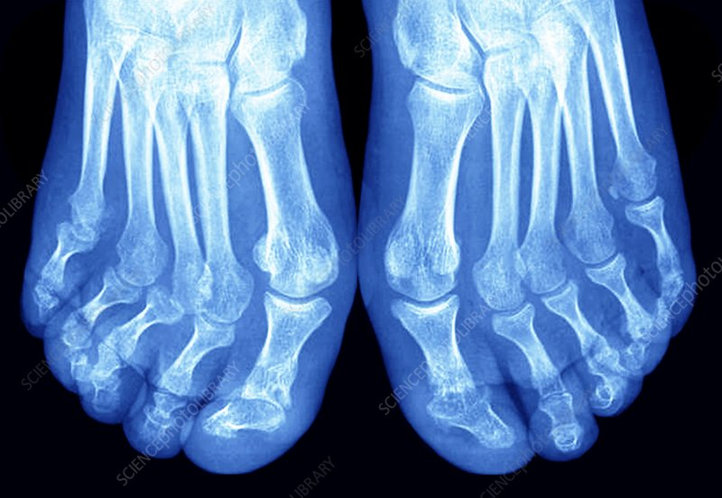Arthritic feet, X-ray