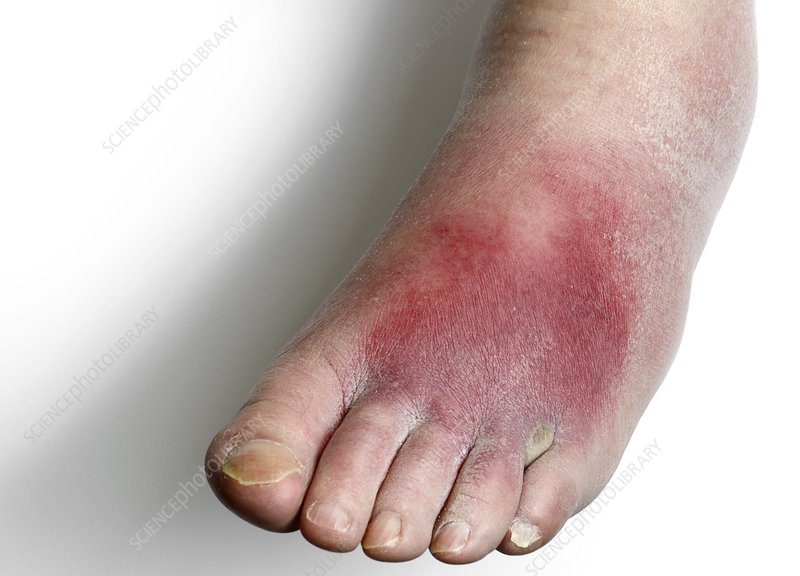 Cellulitis of the foot
