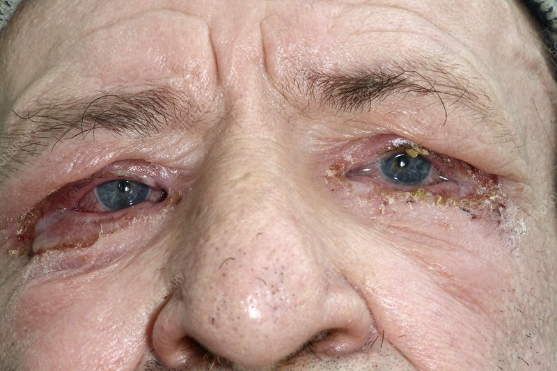 Impetigo around the eyes