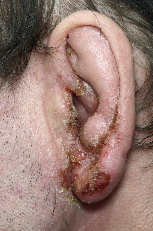 Impetigo on the ear