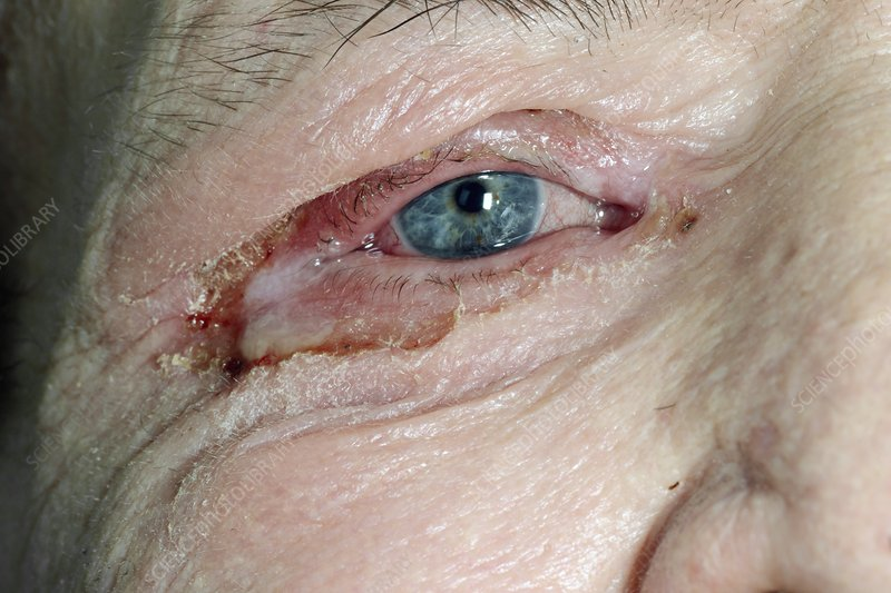 Impetigo around the eye