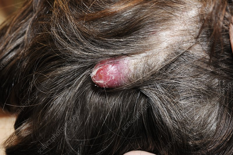 Cancerous nodule on the head