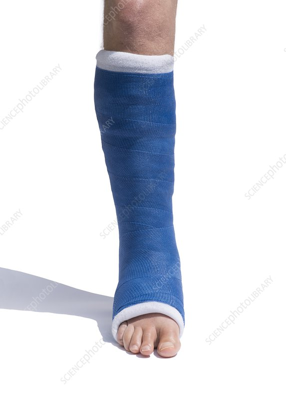 Short Leg Cast in synthetic plaster
