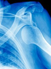 Dislocated shoulder, X-ray