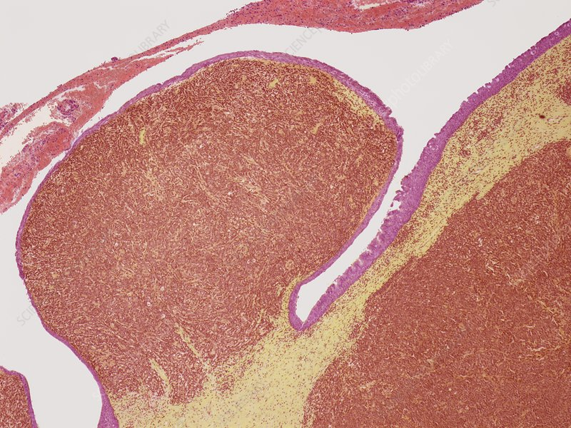 Plasmacytoma, light micrograph