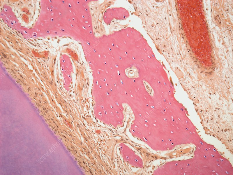 Ovarian tumour, light micrograph