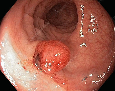 Colonic polyp, endoscope view