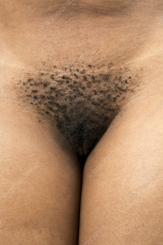 Pubic Hair of an African Woman
