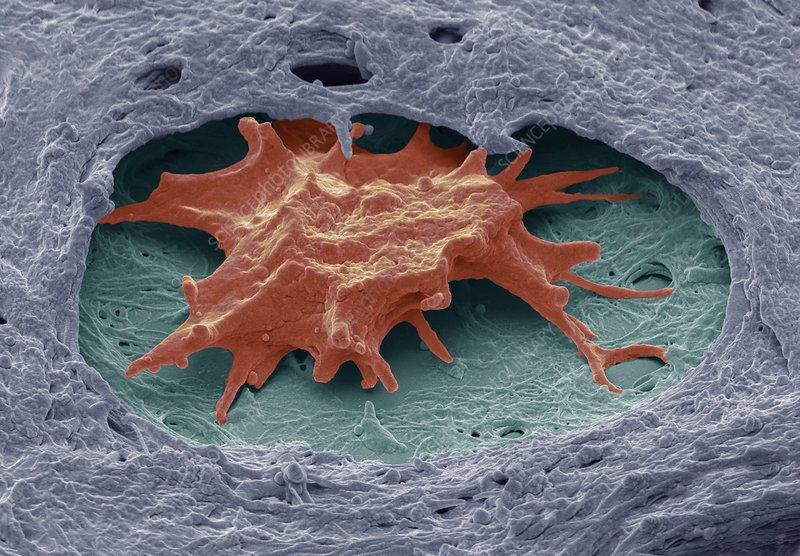 Ovarian cancer, SEM