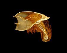 Snail, micro-CT scan