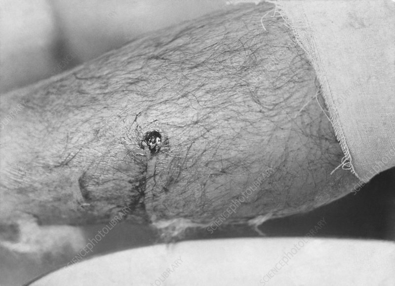 Bullet entry wound