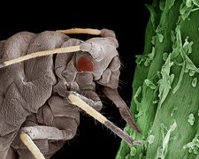 Black aphid feeding on sap, SEM