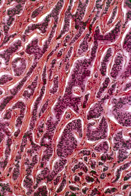 Appendix cancer, light micrograph