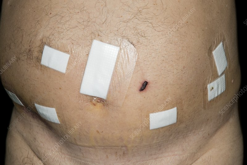 Abdomen after robot-assisted surgery
