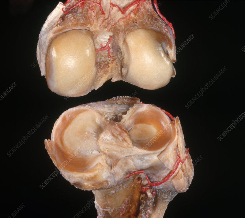 Disarticulated Knee Joint