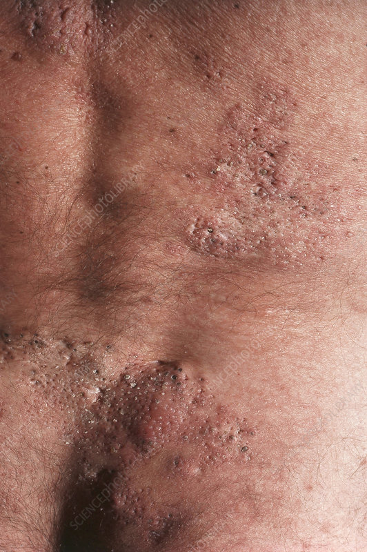Acne on Man's Back