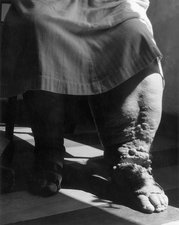 Elephantiasis Caused by Filariasis