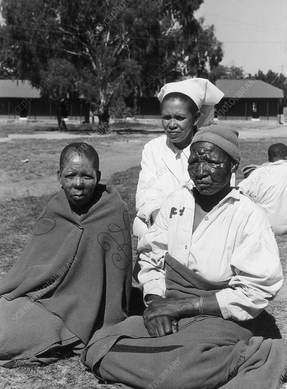 Lepers and Nurse, Lesotho, Africa