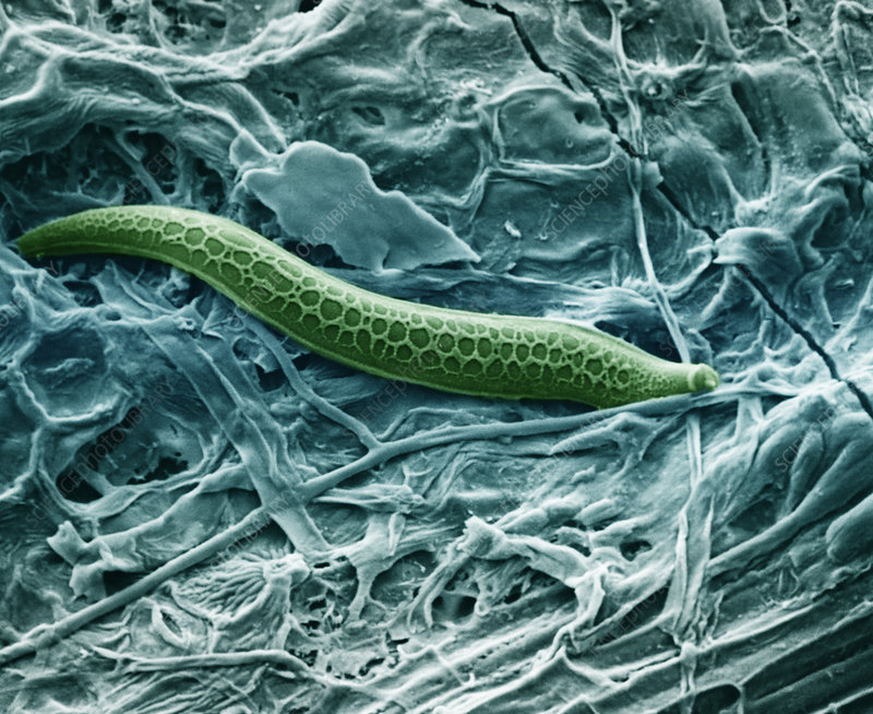 Nematode Emerging From Leaf (SEM)