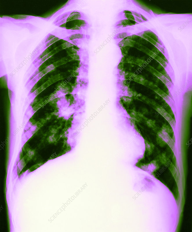 Tuberculosis of the Lung