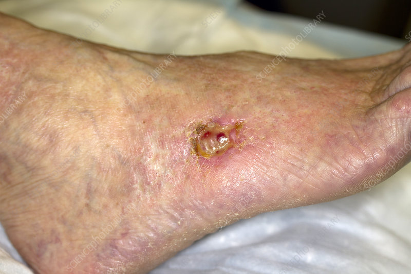 Chronic Peripheral Venous Insufficiency