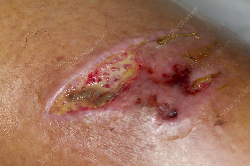 Venous Stasis Ulcer