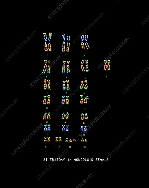 Female Karyotype showing Down's Syndrome