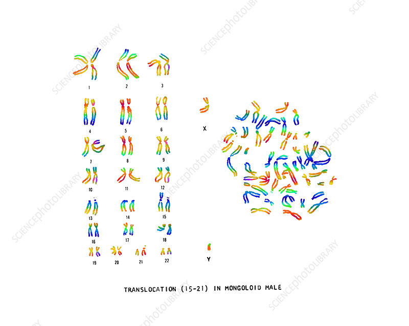 Male Karyotype showing Down's Syndrome