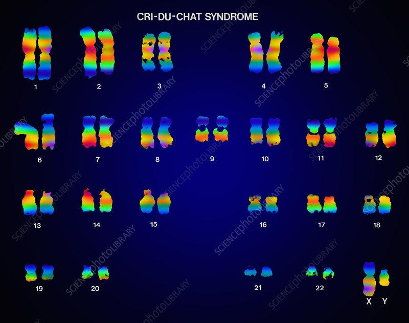 Cri du chat syndrome karyotype