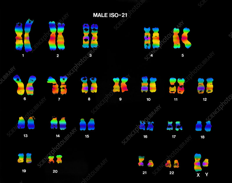 Isochromosome 21 in Male Karyotype