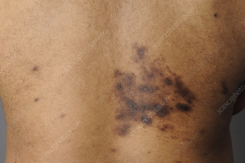 Man with Scarring from Shingles, 28 Weeks