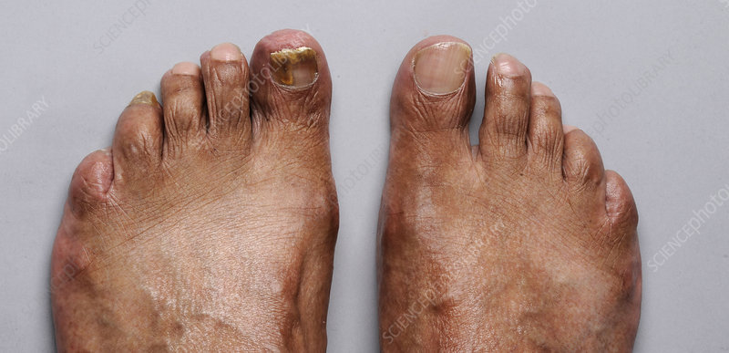 Left Foot Recovering from Nail Bed Fungus