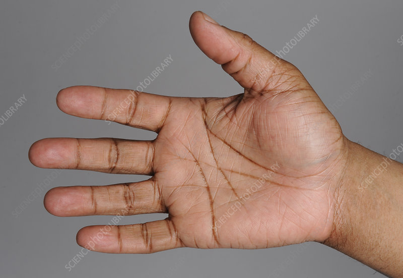 Right Palm of African-American Man