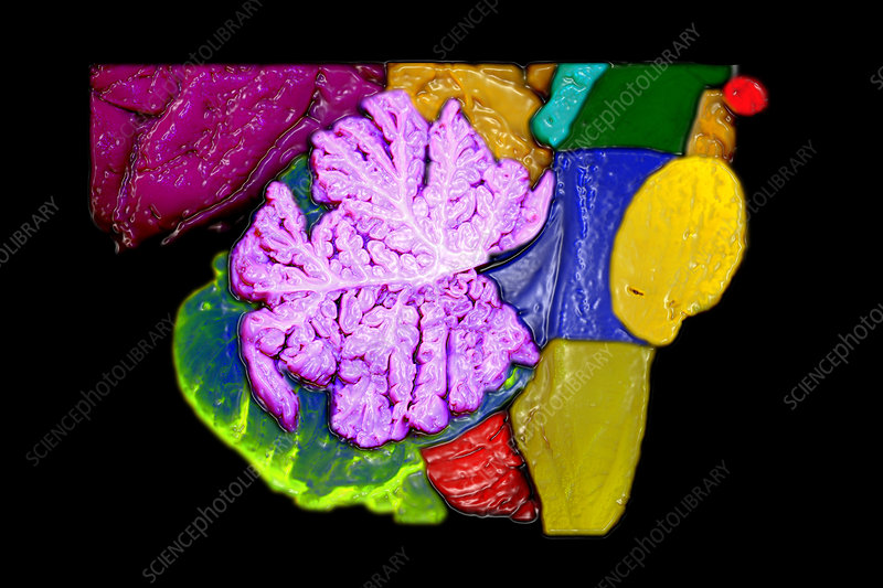 Brainstem, Cerebellum and Occipital Lobe