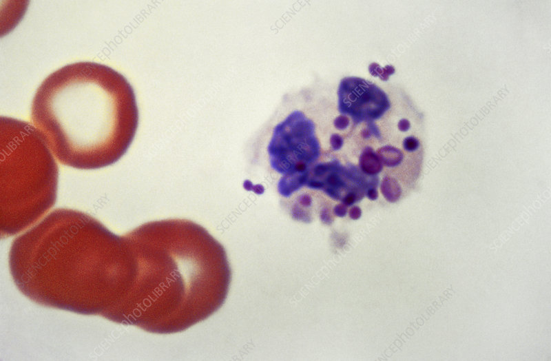 Staphylococcus in White Blood Cell