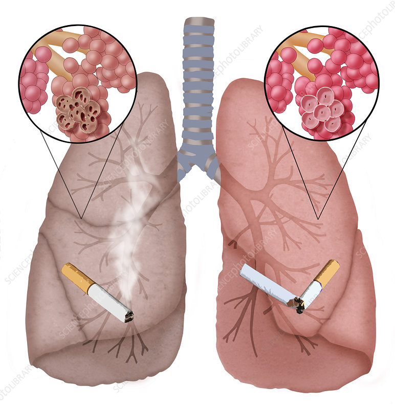 Conceptual Illustration of Emphysema